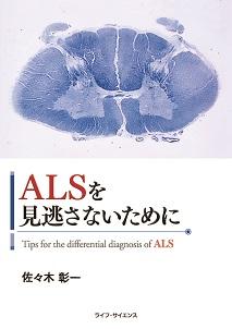 ALSを見逃さないために_アイキャッチ画像(W213×自動)